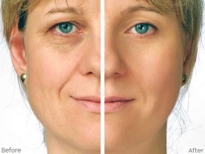 Before and after age corrective treatment